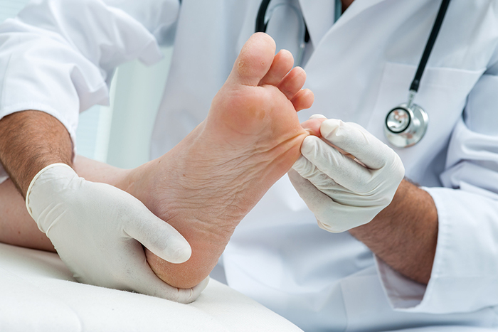 Doctor dermatologist examines the foot on the presence of athlet